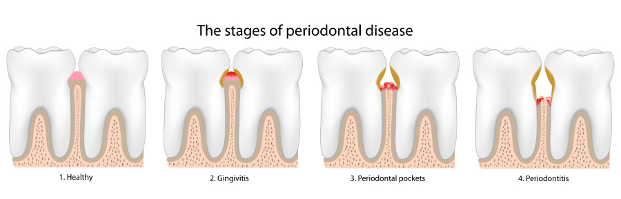 Graphic showing the stages of periodontal or gum disease