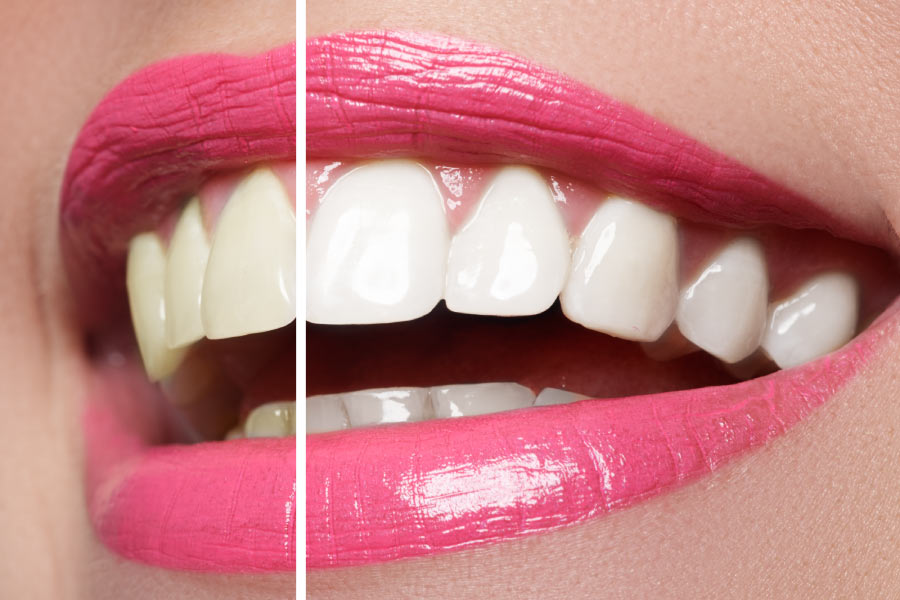 Close up pink lip-sticked smile shows the effects of teeth whitening on half of the smile.