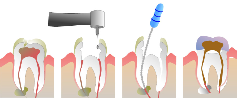 Graphic showing the stages of root canal therapy.